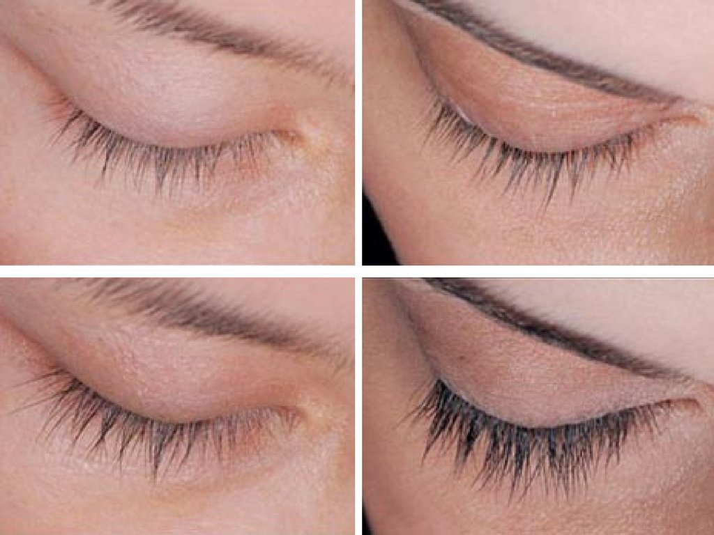 Hairgenics Lavish Lash Serum Before After Pics Reviews Where
